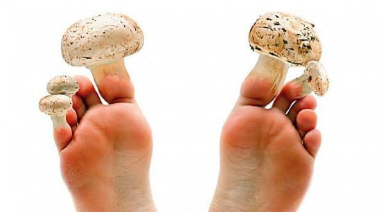 Уход за ногами   грибок ногтей ног. Как лечить грибок ногтей?